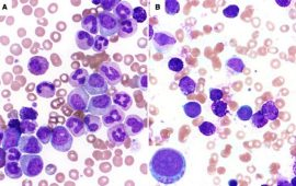 Chronic Myelogenous Leukemia